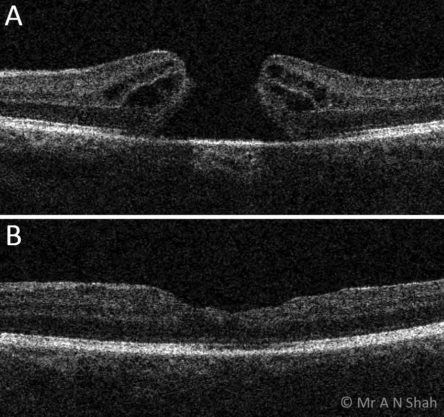This 66 year old lady was referred to Mr Shah with sudden reduction in vision in her left eye in June 2015. A, the OCT scan in June shows a full-thickness defect in the macula and this was associated with a profound reduction in central vision. B, Mr Shah performed a vitrectomy procedure to close the hole and this OCT scan shows the post-operative appearance with a closed hole. This patient's vision improved by over three lines on the testing charts following surgery.