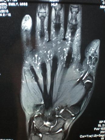 МРТ кисти руки - Виды МРТ