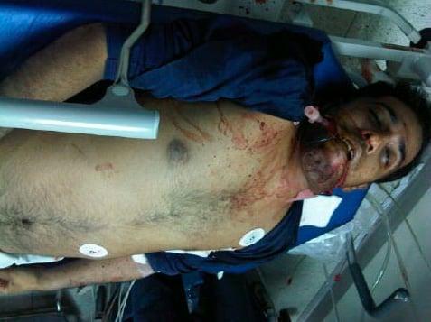 The body of Ali Abdulhadi Mushaima