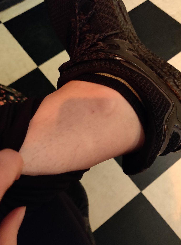 My Ankle Before the Animal Crossing Tattoo and 'A Year of MSBLife'