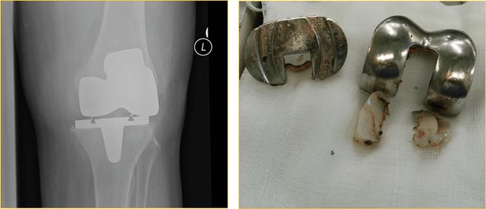 Моники эндопротезирование тазобедренного сустава отзывы. Замена тазобедренного сустава: цена операции, импланта и реабилитации
