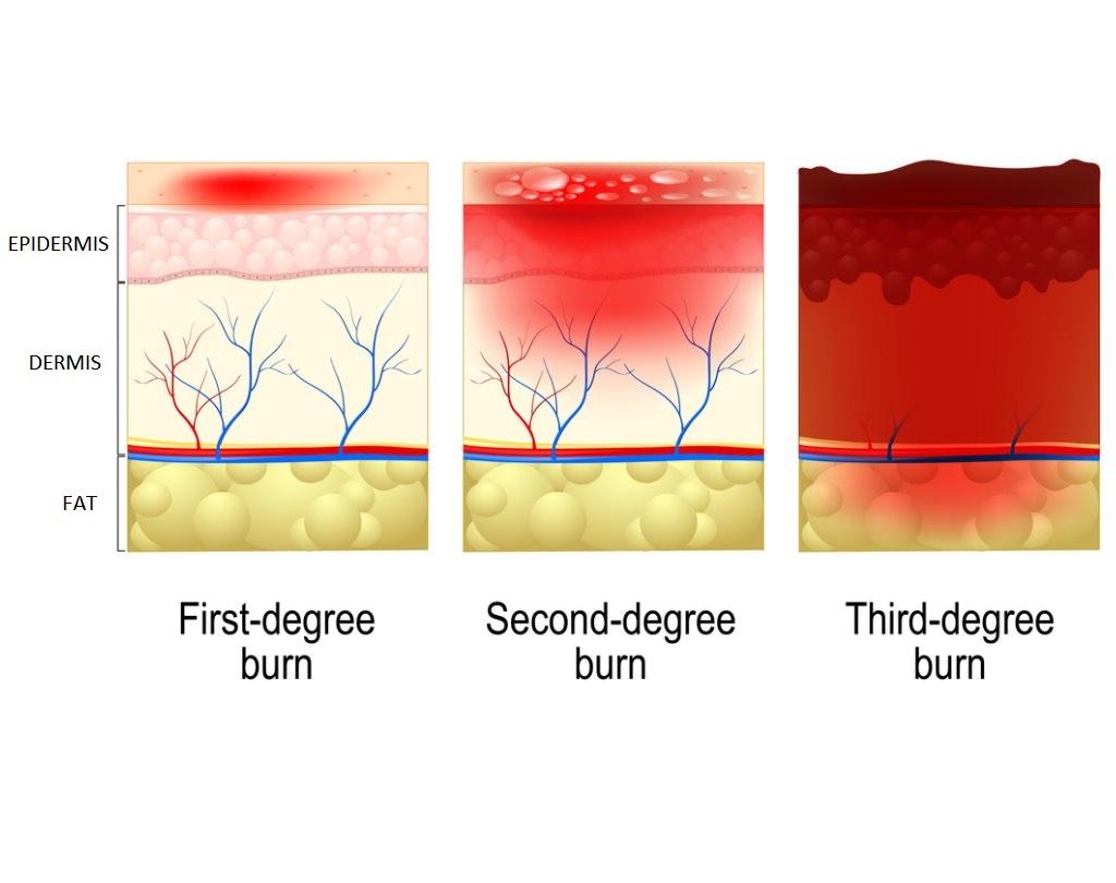 Understanding A Burn Injury