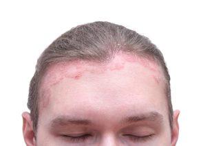 ヤバすぎ】白髪染めでかぶれた!症状・治療薬・原因・対策のすべて
