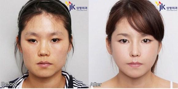after korea midify 11