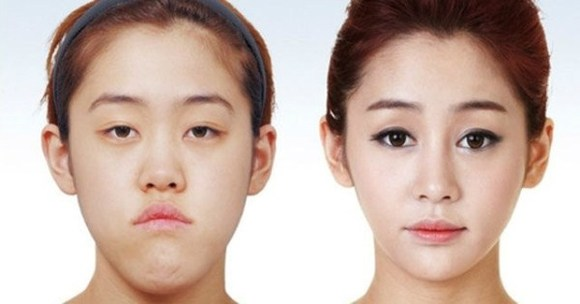 after korea midify 12