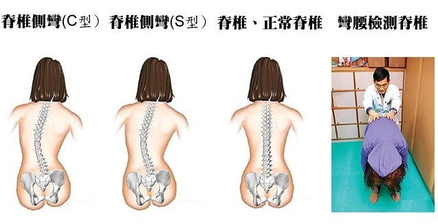 脊椎不好百病生,終於找到矯正脊椎的好方法! (歡迎分享給 需要久坐的朋友~)