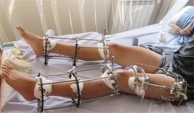 因為這樣荒謬的理由..這些人心甘情願被人「打斷腿」!還要忍受難以置信的殘酷療程!