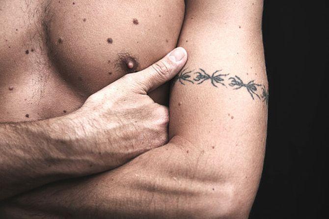 Интересные факты о коже человека, Родинки на теле