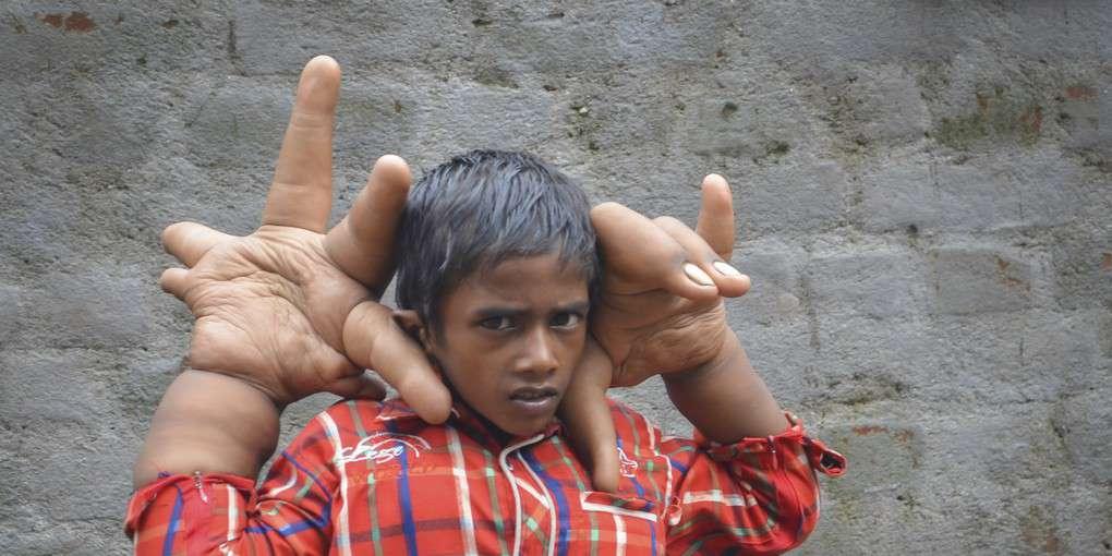 Мальчик с гигантскими руками. Самые необычные люди