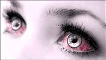 Чем лечить покрасневшие глаза