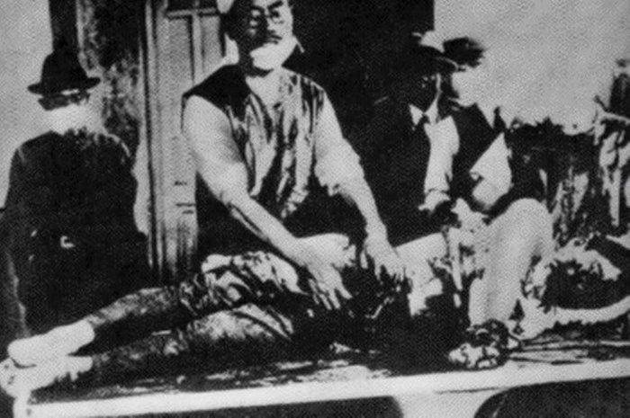 Случаи применения биологического оружия в истории