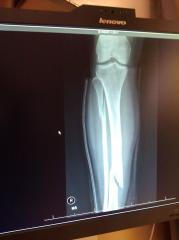 ER Xray of daughter's leg