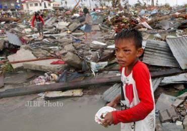 Gambar 2. Seorang Anak Kecil Yang Terluka Akibat Amukan Topan Haiyan