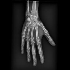 Brenda's broken hand (little finger)