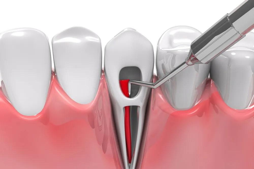 root_canal_arrow_dental_nairobi_kenya