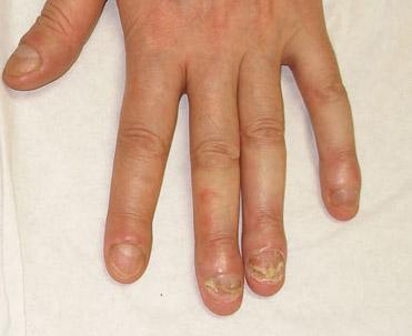 La onicomicosis no solo se presenta en las uñas de los pies, sino también en las manos