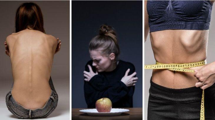 afecta-mujeres-fantasma-anorexia-fotosdreamstime_medima20160428_0151_31
