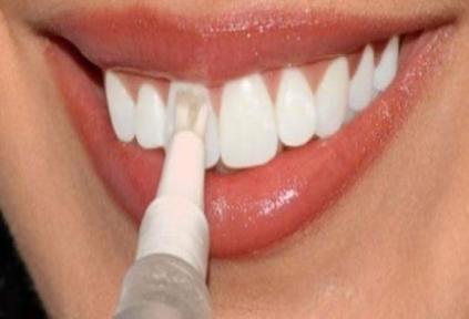 طريقة برد الاسنان في البيت