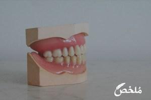 تفسير حلم سقوط الأسنان التركيب