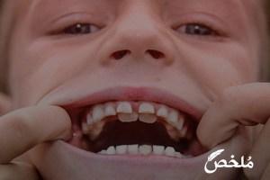 تفسير حلم سقوط جميع الاسنان