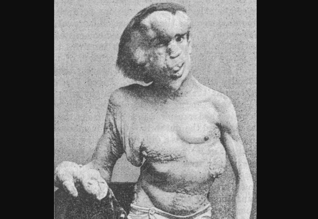 "A photo of Joseph Merrick, often referred to as the ""Elephant Man,"" taken in 1889. This photo was originally published in the British Medical Journal, Vol. 1, No. 1529 (April 19, 1890)."
