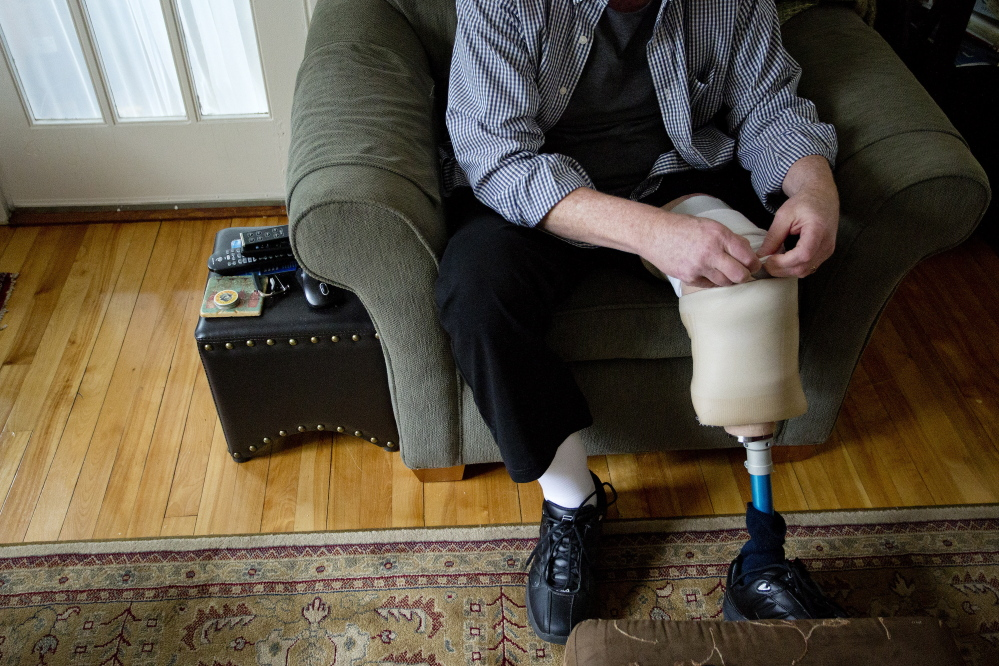 """Tony Reilly of South Portland tucks back the layers of socks he wears with his prosthetic leg. He will return to the stage this week with """"The Coma Monologues,"""" which he wrote while lying in a hospital bed after a Dec. 23 car accident that killed his wife, Susan."""