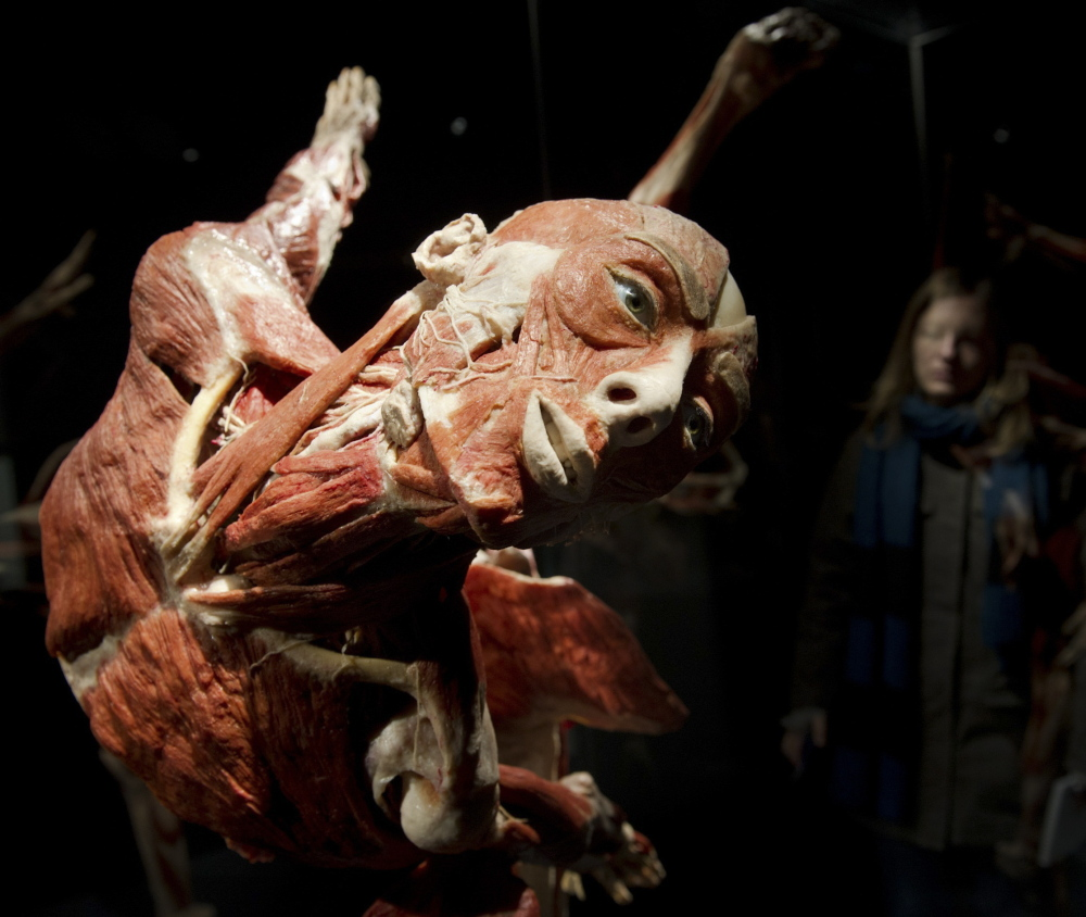 """A visitor looks at plastinated human bodies during a February 2015 media preview before the opening of the """"Body Worlds"""" exhibit in Berlin. Plastination preserves real human remains for study using a process that replaces bodily fluids and fat with fluid plastic."""