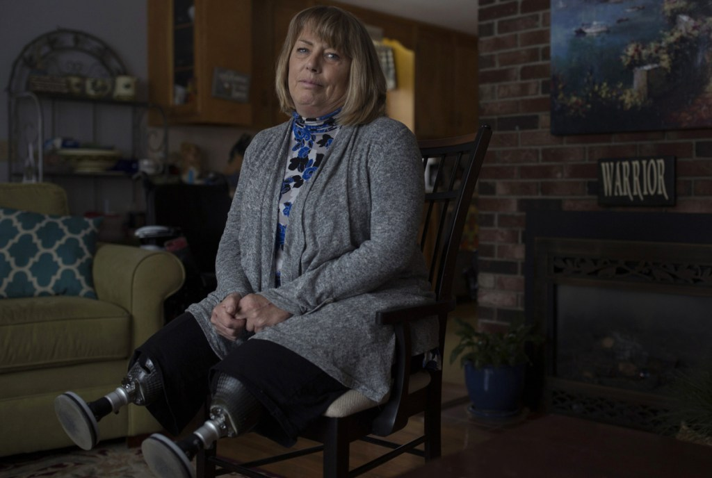 """Terri Anthoine poses at her home in Portland on Tuesday. Anthoine lost both her legs when a car struck her last December, but refuses to hold a grudge and did not want the elderly driver sent to prison. """"I can't be angry, because I won't ever get better. You just have to let the anger go."""""""