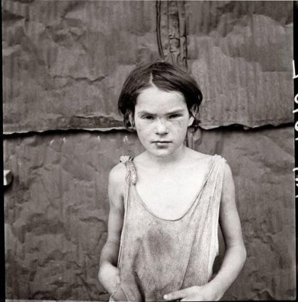 dorthea_lange_damaged_child