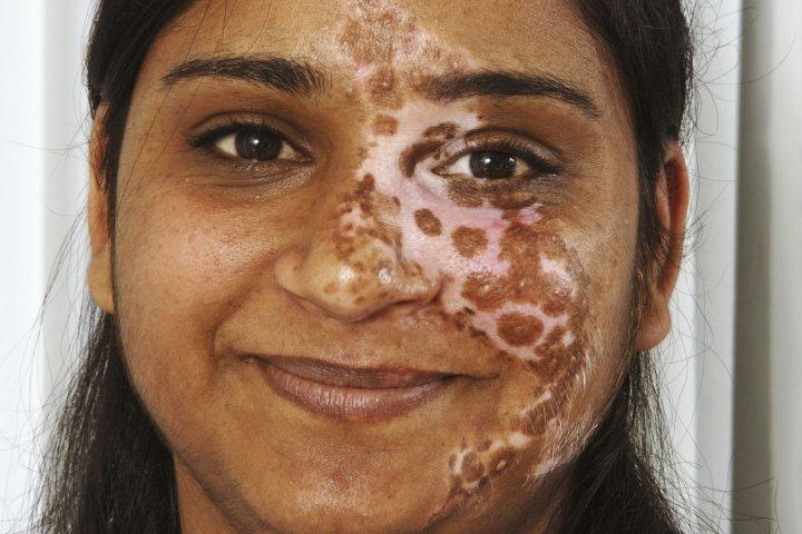 Segmental vitiligo