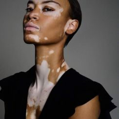 Vitiligo: Causes, Symptoms And Treatment