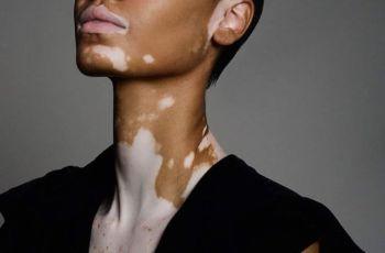 Vitiligo: Causes, Symptoms And Treatment