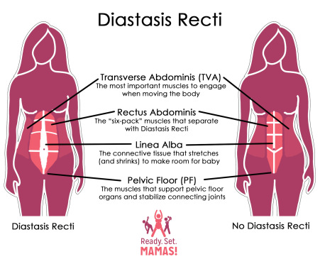 Diastasis, diastasis recti, recti, abs, ab muscles, pregnancy, post partum, pregnancy problems, post partum problems, ab separation, excercises