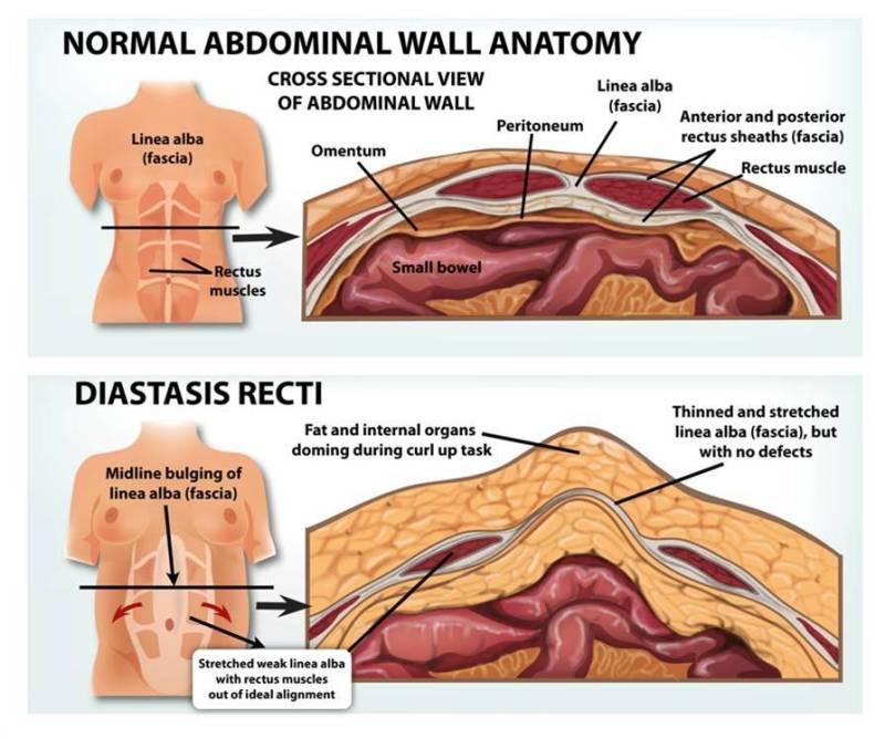 Diastasis, diastasis recti, recti, abs, ab muscles, pregnancy, post partum, pregnancy problems, post partum problems, ab separation, excercises