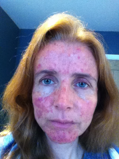 Acne In Hair >> The Acne And The Hair Dye Mum Of Three World