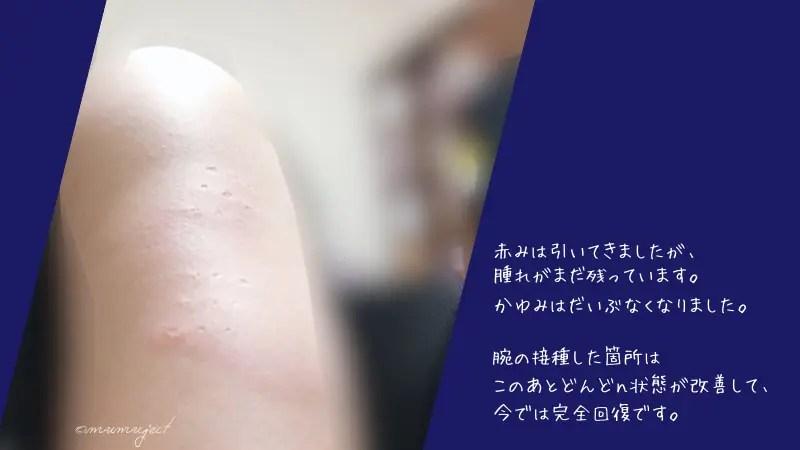 新型コロナ-コロナ-ワクチン-モデルナ-感想-副反応-熱-痛み-体験談