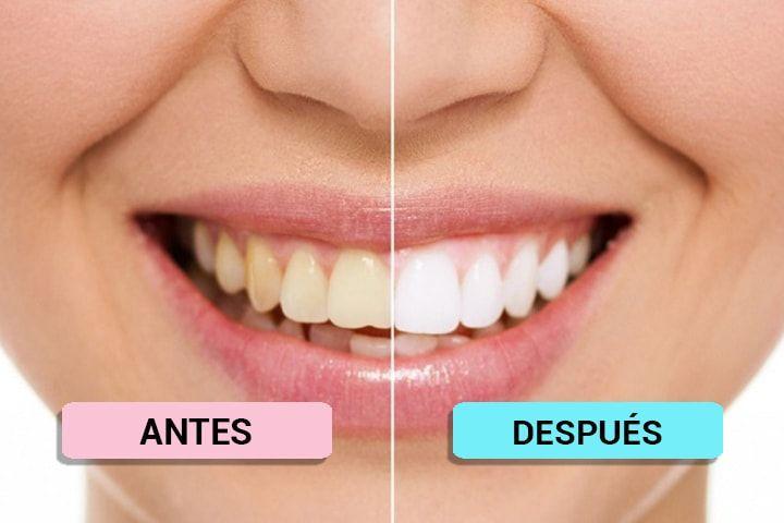 blanquamiento dental
