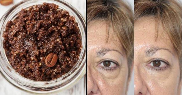 Elimina las ojeras con remedios caseros