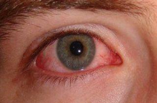 alergia ojos rojos