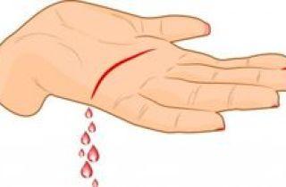 dibujo de corte en palma de la mano