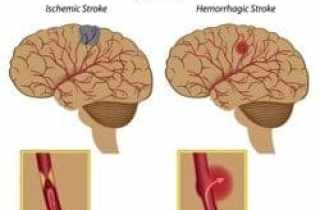 ictus isquémico y hemorrágico