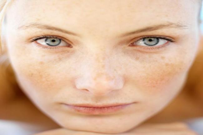 melhores produtos para melasma 300x200 - Como tirar mancha de melasma do rosto?Descubra