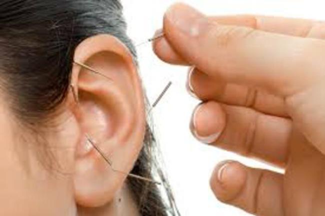Curso de acupuntura auricular 300x200 - Curso de Auriculoterapia Online com Certificado