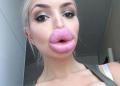 Beiço Monstro: Dez garotas que perderam completamente a noção