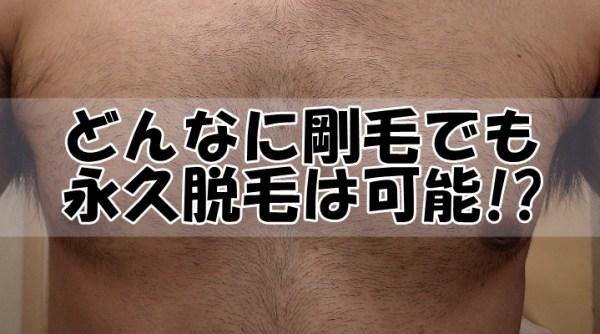 どんなに胸毛・腹毛が剛毛でも永久脱毛は可能なのか?