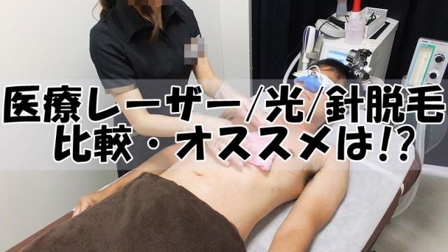 メンズ医療レーザー・光・針脱毛の比較・オススメは!?