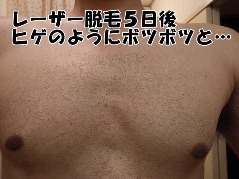 レーザー脱毛5日後の胸毛の様子