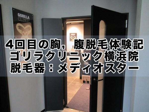 ゴリラクリニック4回目の胸毛・腹毛脱毛体験記