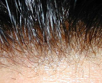 hair-follicle.jpg