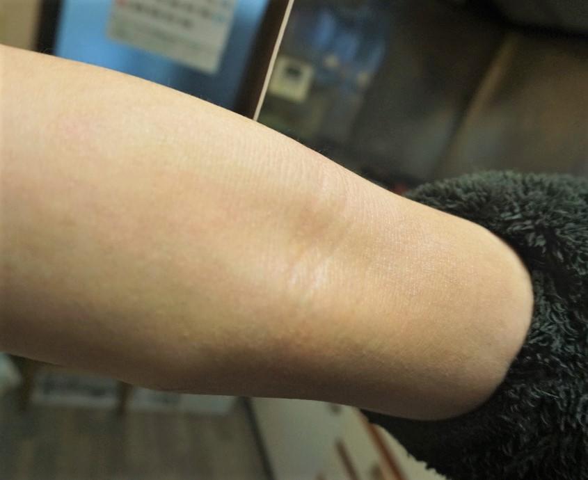 治った腕の内側の水虫(?)あせも(?)
